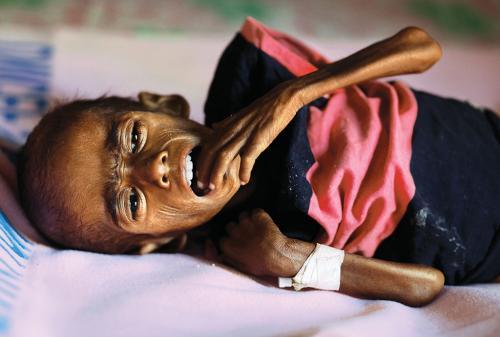 कुपोषण मुक्त होने में भारत को लगेंगे कई दशक