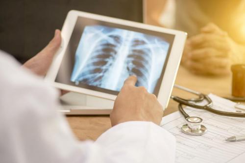 जानिए क्यों आती है टीबी के मरीजों को खांसी