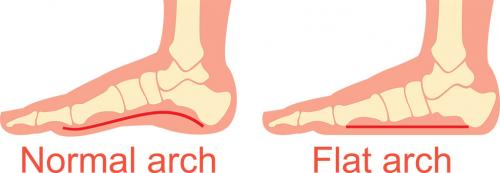 What would happen if humans had flat feet?