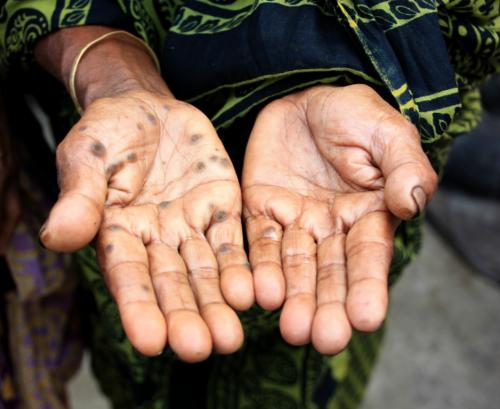 Arsenic-affected habitations in India up 145% in last 5 yrs
