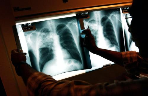 First ever national survey shows the extent of South Africa's TB problem