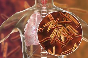 From 'incompatible with life' to reclaiming life, outlook on TB is changing