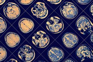 How AI may help diagnose mental illnesses