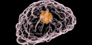 Protein marker for a deadly brain tumour identified