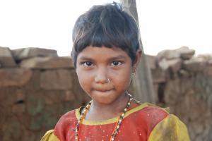 पेरू, इथोपिया से भी पिछड़े हैं भारतीय बच्चे, शारीरिक विकास में अवरोध