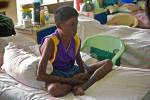 At least 20,000 hidden cases of leprosy identified in less than a month