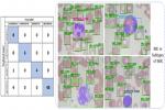 रक्त कोशिकाओं की गणना के लिए बनाई स्मार्ट माइक्रोस्कोपी तकनीक