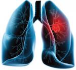 Learning lessons from across Europe – the hidden costs of COVID-19 on lung cancer