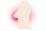 प्रारंभिक अवस्था में स्तन कैंसर का पता लगाने के लिए कारगर हो सकता है यह नेटवर्क