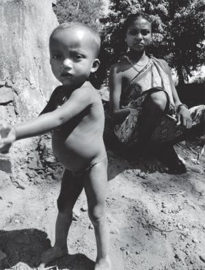 Modi Sarkar's big budgetary miss: Malnutrition