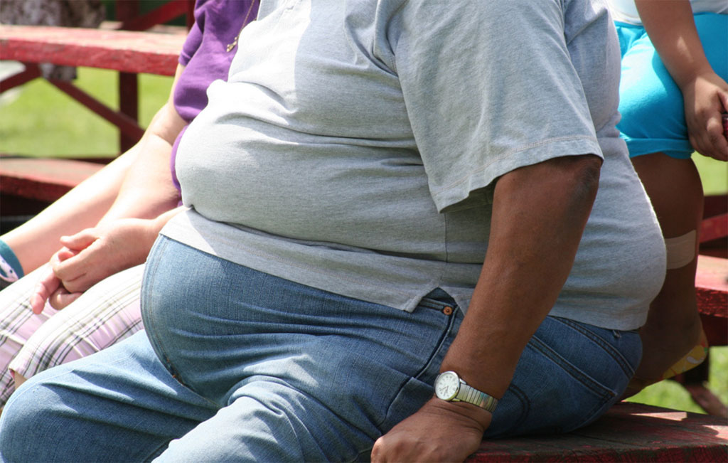 Every third person in world is obese, says study