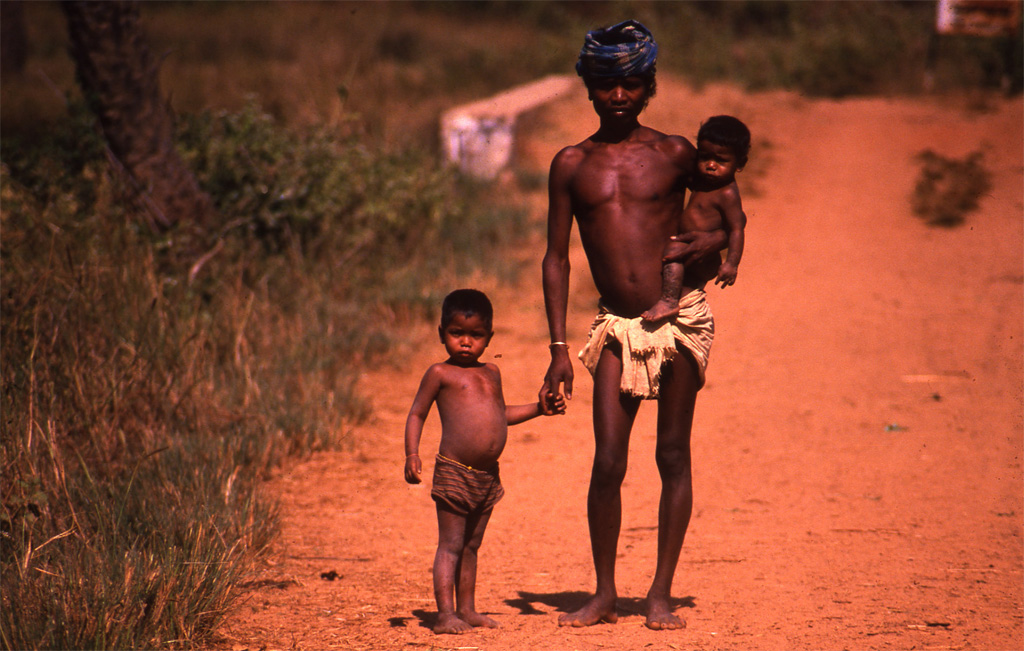 High prices of food lead to malnutrition, says study