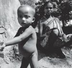 India still has a high rate of malnutrition, reveals new National Health Survey